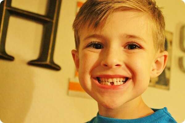 boy with a gaping tooth