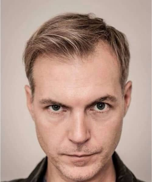 modern preppy look hairstyles for men with receding hairlines