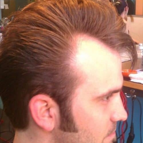the elvis hairstyles for men with receding hairlines