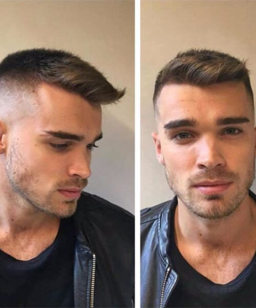 undershave hairstyles for men with receding hairlines